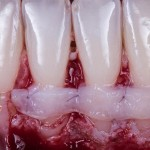 ARE_YOU_READY_FOR_THE_SECOND_SECRET_ORAL_SURGERY_2