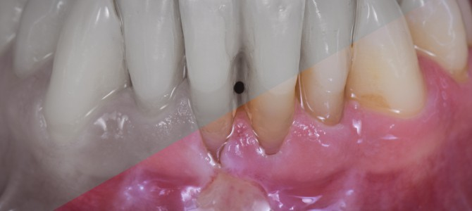 VIDEO TUTORIAL INSIDE – COMPLETE SURGICAL TECHNIQUE OF THE FREE GINGIVAL GRAFT